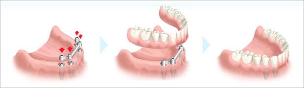 Les dentier sur implants ont une solution plus fixe et plus confortable que les prothèses traditionnelles.