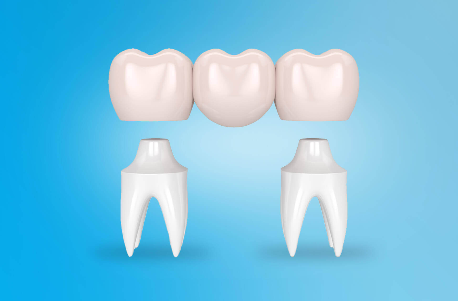 Pont dentaire bridge dentaire 2