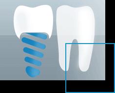 Traitements dentaires Implants dentaires