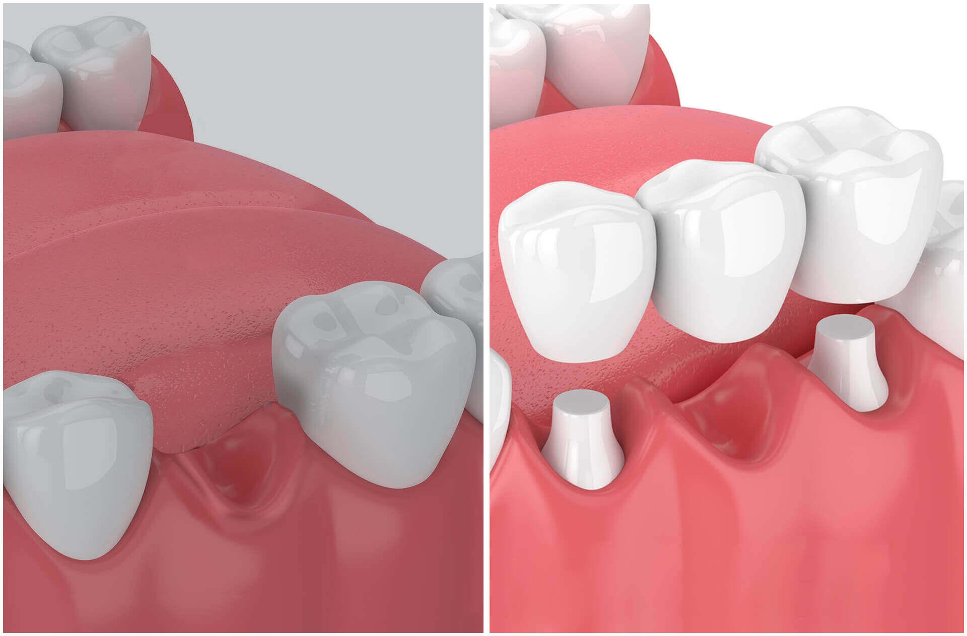 pont dentaire bridge dentaire
