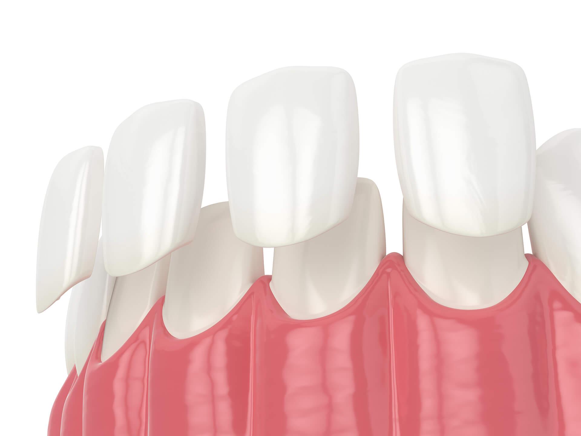 Facette dentaire comment ca se voit