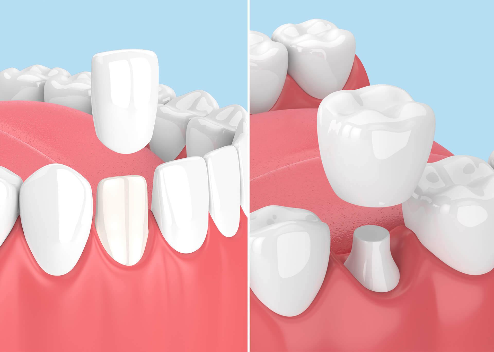 Facette dentaire ou couronne dentaire